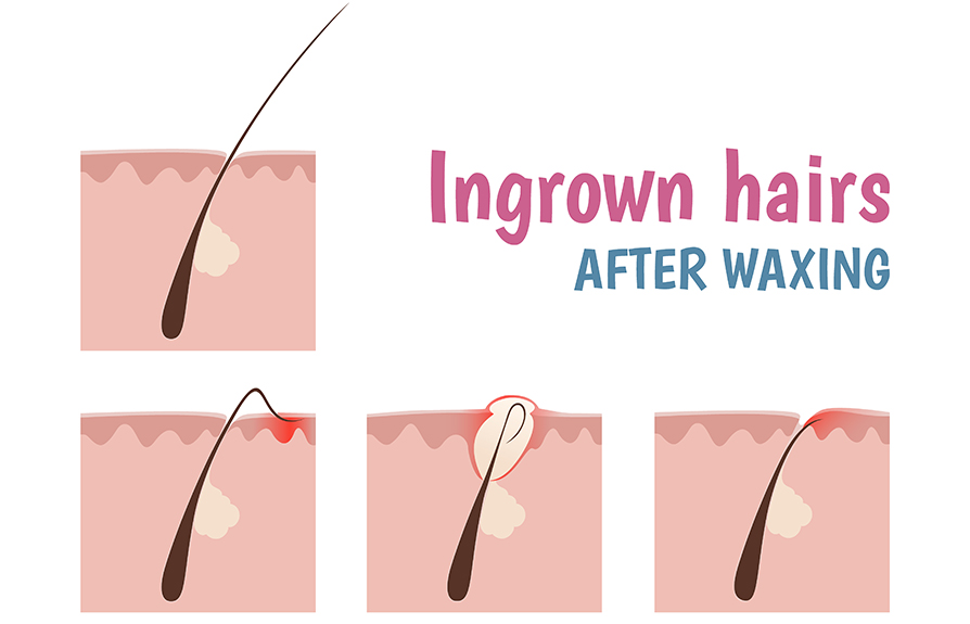 How To Get Rid Of Ingrown Hairs