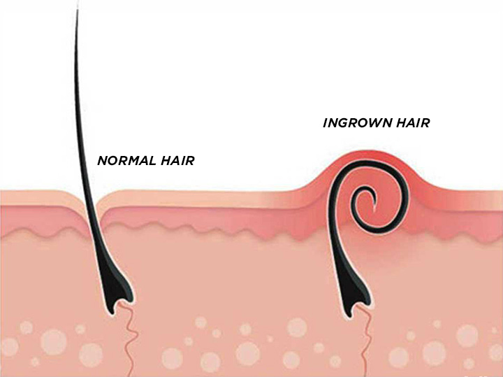 Perfect Epilation Ingrown Hair