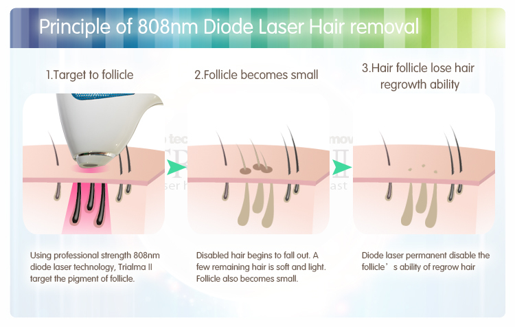 Laser Hair Removal for Dark Skin at Home Diagram